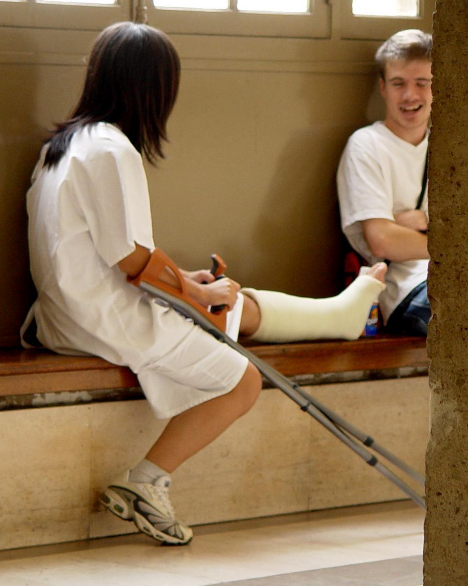 нога в гипсе фото девушки